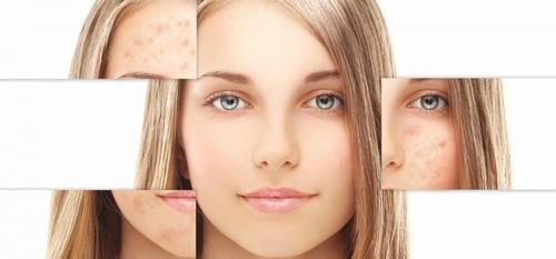 Nám da là bệnh lý về da xuất hiện khá phổ biến ở các chị em đã bước qua độ tuổi 30.