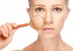 Những vấn đề da thường gặp dịp cuối năm và giải pháp