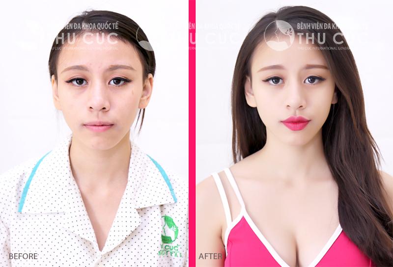 Kết quả sau phun xăm môi tại Thu Cúc Clinics. Lưu ý, kết quả khác nhau tùy thuộc vào cơ địa khác nhau