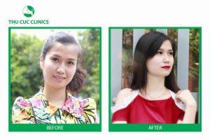 Thay da sinh học: Bí quyết da đẹp không tuổi – Đuổi thời gian