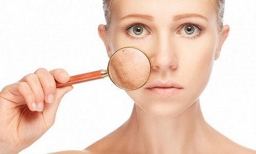 Nám da là tình trạng khá phổ biến thường gặp ở phụ nữ trung niên