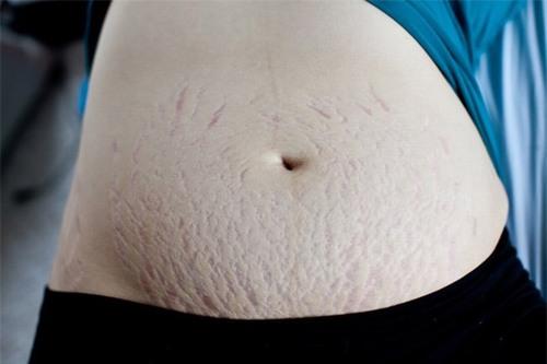 Rạn da thường xuất hiện từ tháng thứ 5 của thai kì do sự phát triển của em bé trong bụng và sự tăng nhanh của cân nặng thai phụ.