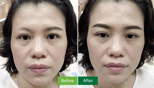 Kết quả điêu khắc lông mày tại Thu Cúc Clinics (lưu ý: kết quả khác nhau phụ thuộc vào tình trạng từng người)