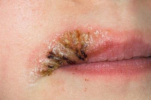 Khả năng mắc bệnh truyền nhiễm của bạn sẽ tăng lên khi lựa chọn phun xăm dạo