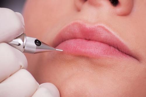 Trên thị trường thẩm mỹ hiện nay có rất nhiều cơ sở vẫn còn sử dụng công nghệ phun xăm môi cũ, điều chỉnh bằng tay nên dễ gây ra tổn thương sâu cho da môi.