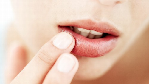 Sau khi phun môi bạn nên bôi thuốc dưỡng môi theo chỉ định của kĩ thuật viên