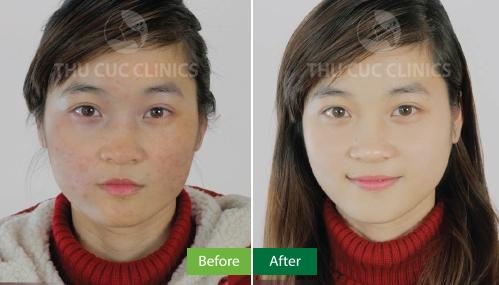 Kết quả trị mụn Blue Light tại Thu Cúc Clinics (Lưu ý: Kết quả khác nhau tùy thuộc vào cơ địa từng người)