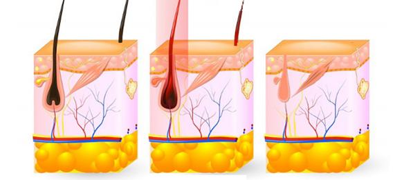 Với sự kết hợp của sóng RF và bước sóng 808nm, laser tác động phá hủy tận sâu tổ chức chân, nang lông đồng thời ngăn chặn nguồn cung cấp dinh dưỡng, giúp triệt lông hiệu quả, ngăn ngừa tái phát