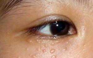 Cách chữa mụn thịt quanh mắt bằng dân gian