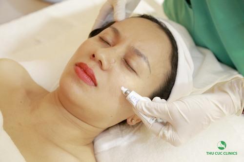 Nám da vẫn được xem là một trong những khuyết điểm khó khắc phục nhất nhưng cũng không thể làm khó được công nghệ Laser Yag.