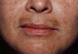 Nám râu và cách điều trị nám râu hiệu quả