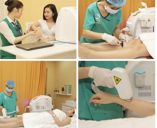 Quy trình triệt lông Diode laser diễn ra nhẹ nhàng, chuyên nghiệp chuẩn Bộ Y tế tại Thu Cúc Clinics