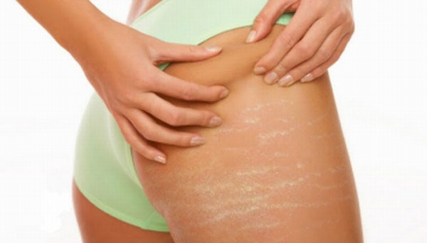 Cũng như rạn da bụng, rạn da mông xuất hiện khi collagen và các lớp đàn hồi bị đứt gãy, phá vỡ.