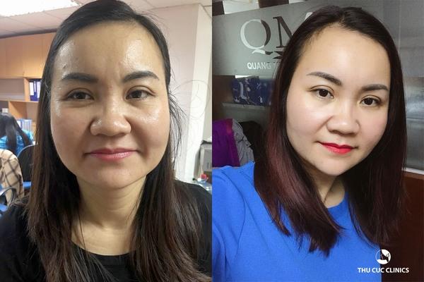 Công nghệ Hifu hiện đại, phái đẹp hoàn toàn có thể lưu giữ được những nét thanh xuân trên gương mặt chỉ sau 1 giờ trải nghiệm (Lưu ý: Kết quả có thể khác nhau tùy cơ địa từng người)