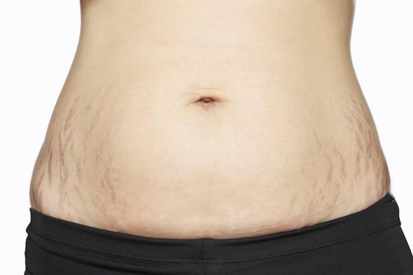 Di truyền là một trong những nguyên nhân hàng đầu gây nên tình trạng rạn da sau sinh