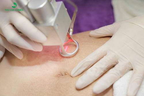 Để trị rạn da nhanh chóng và hiệu quả hơn thì thay vì thực hiện các biện pháp tại nhà các chị em nên sớm tìm tới các biện pháp trị rạn da bằng công nghệ cao