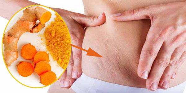 Sử dụng nguyên liệu tự nhiên là một trong những cách để trị rạn da bụng