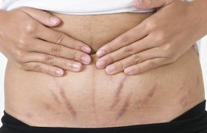 Top 6 loại thực phẩm giúp bạn trị rạn da sau khi sinh