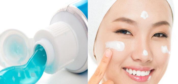 Kem đánh răng là nguyên liệu dễ tìm nhất trong nhà giúp trị mụn đầu đen hiệu quả