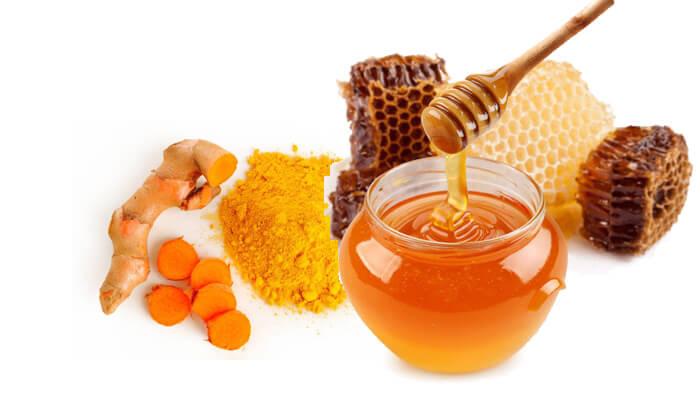 Tinh bột nghệ và mật ong giúp trị mụn trứng cá nhẹ đơn giản tại nhà