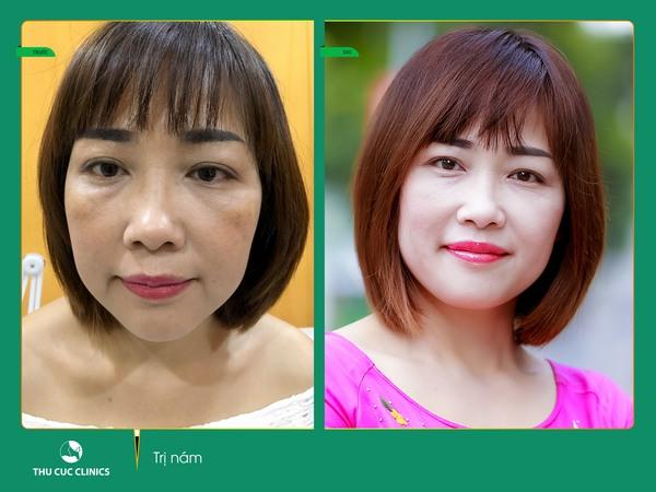 Làn da sẽ sớm trở nên đều màu tự nhiên, mịn màng, sáng hồng và không tì vết sau khi trị nám Laser Yag
