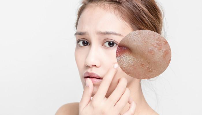 Mụn thịt là những khối u lành tính có chân mụn nằm sâu dưới da