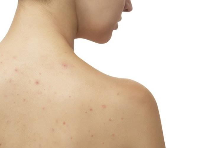 Sự thay đổi nội tiết tố là nguyên nhân đầu tiên gây ra mụn ở lưng