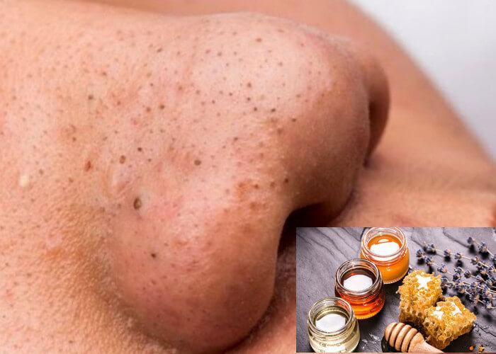 Trị mụn đầu đen tại nhà bằng mật ong là cách thực hiện đơn giản và mang lại hiệu quả tốt