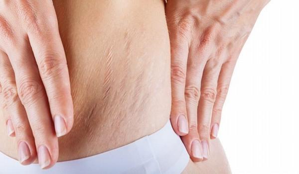 Rạn da xuất hiện do collagen và elastin dưới da bị đứt gãy.