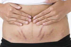 Phụ nữ bị rạn da bụng phải làm sao?