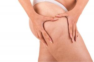 Rạn da ở đùi và cách chữa trị