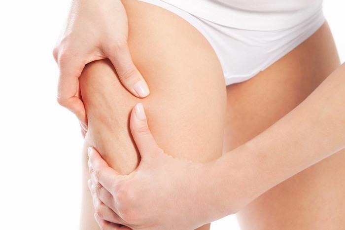 Sự phát triển nhanh về chiều cao, cân nặng là nguyên nhân chính gây rạn da ở nhiều bạn trẻ đang trong độ tuổi dậy thì.
