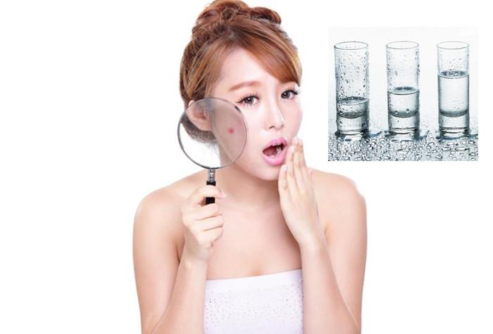 Uống nước giúp loại bỏ và hạn chế sự phát triển của mụn nhờ quá trình đào thải độc tố cơ thể
