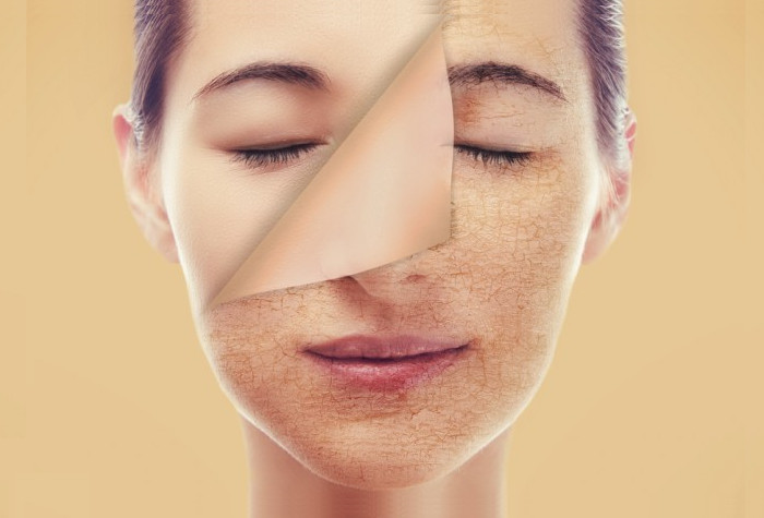 Thiếu nước khiến da khô, sần dùi và gây mụn