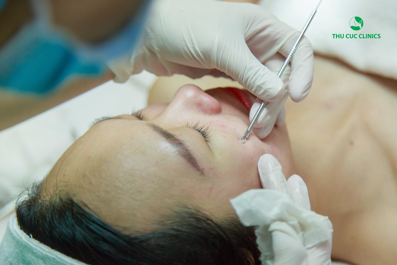 Các chuyên viên bằng kỹ thuật và dụng cụ y tế khéo léo loại bỏ nhân mụn mà không gây đau đớn hay tổn thương
