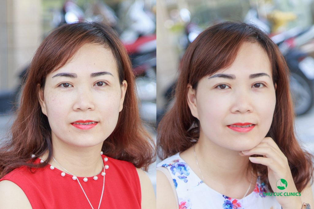 Không chỉ trị nám hiệu quả, khách hàng sau thực hiện còn hài lòng với làn da sáng mịn (Lưu ý: kết quả còn tùy thuộc cơ địa mỗi người)