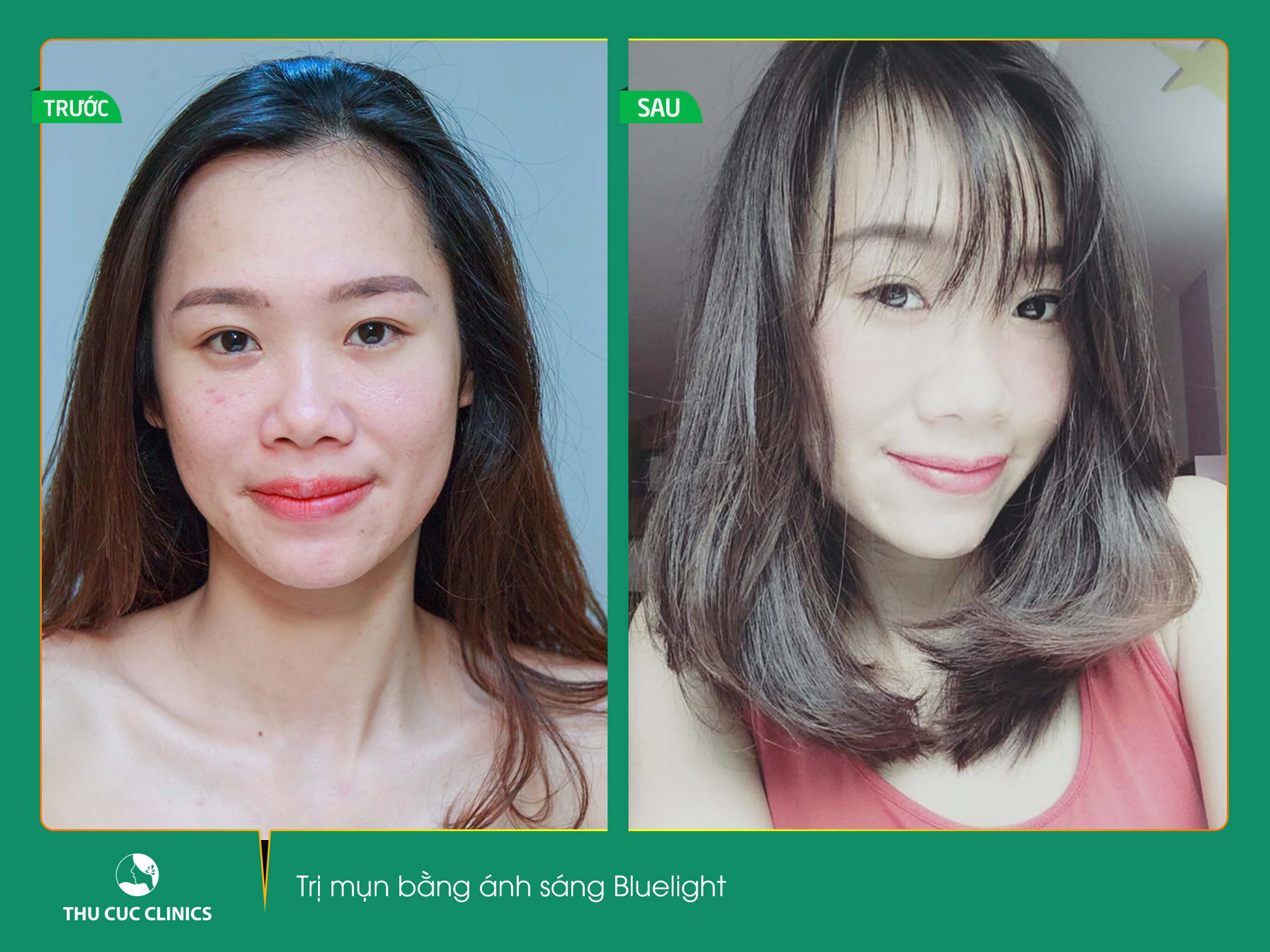 Chỉ sau 1 liệu trình trị mụn xóa thâm. Kim Oanh đã sở hữu khuôn mặt sạch mụn, mịn màng, tươi trẻ