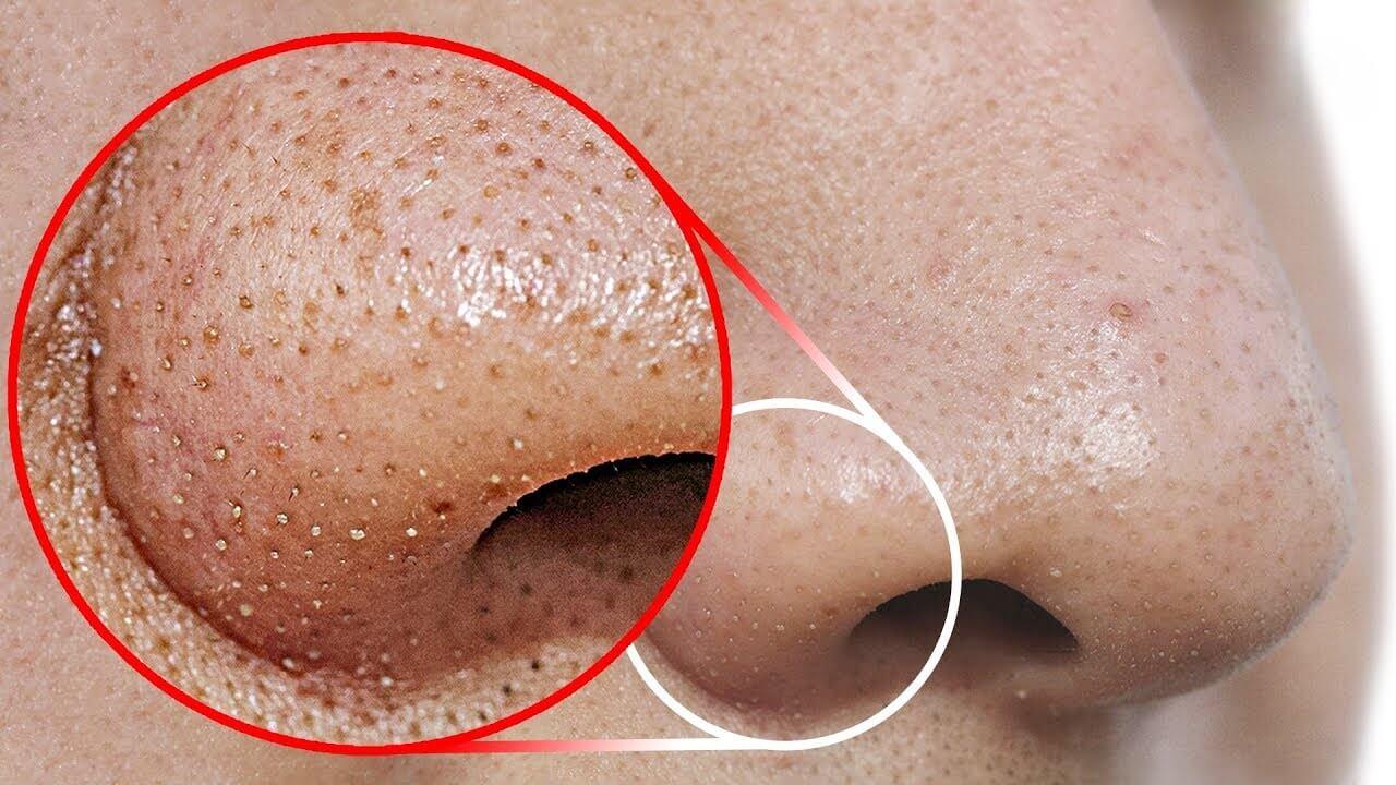 Dâu tây trị mụn đầu đen hiệu quả giúp làm sạch da, lấy đi các tế bào chết, loại bỏ nguyên nhân gây mụn