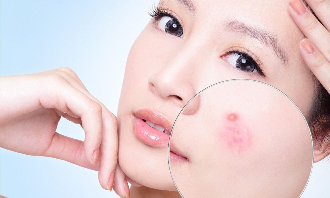Mụn bọc thường gây ra tình trạng sưng đỏ, đau rát trên da
