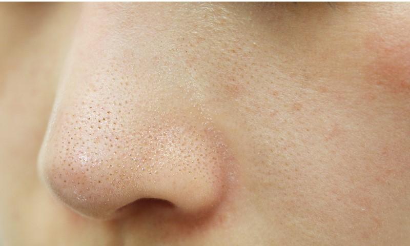 Mụn cám thường xuất hiện ở các vùng mũi với những chấm nhỏ ti li