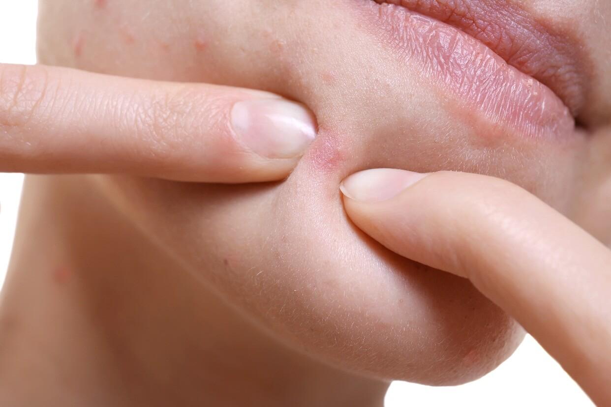 Mụn ẩn dưới da là loại mụn có nhân và đầu nằm ẩn dưới bề mặt nên thường khó phát hiện