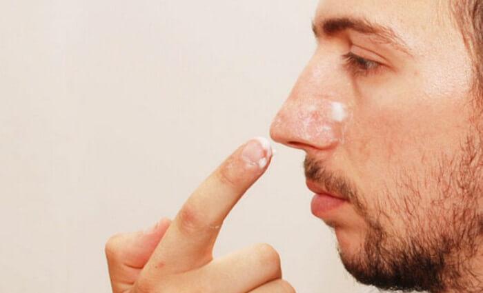 Baking soda có tác dụng trị mụn đầu đen tẩy tế bào chế, se khít lỗ chân lông cho nam giới