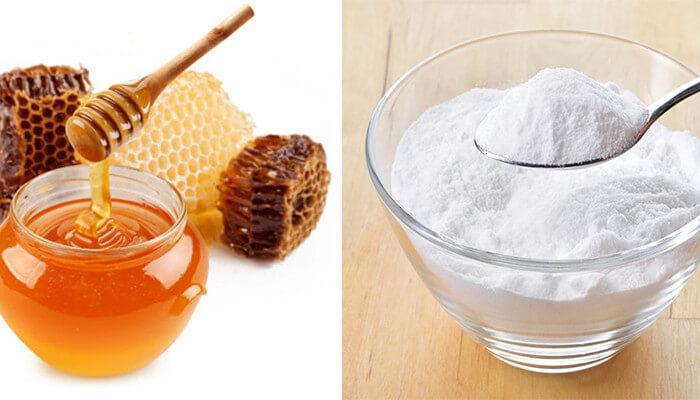 Baking soda khi kết hợp với mật ong giúp trị mụn đầu đen cho nam giới hiệu quả
