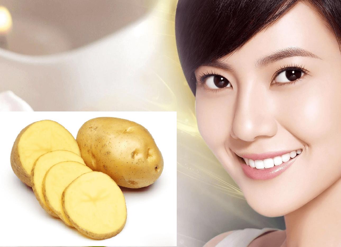 Trị mụn trứng cá hiệu quả chỉ sau 1 đêm bằng khoai tây