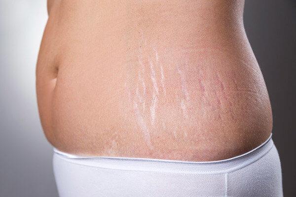 Rạn da là tình trạng thường gặp của chị em phụ nữ sau sinh