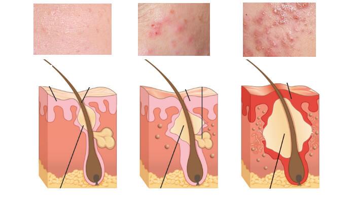 Nguyên nhân gây mụn trứng cá là do bã nhờn tiết quá nhiều làm tắc lỗ chân lông