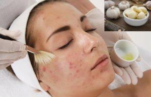 Các cách điều trị mụn trứng cá bọc nhanh nhất tại nhà cho da dầu