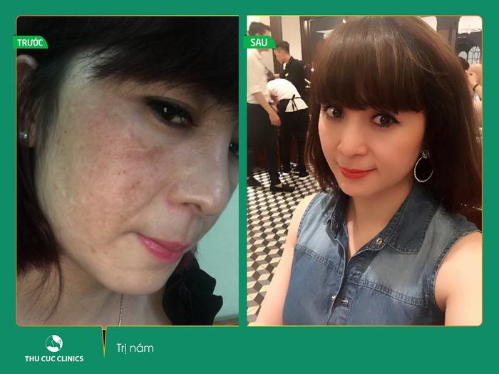 Kết quả trước sau trị nám da của khách hàng (Lưu ý: Kết quả trước sau còn tùy thuộc cơ địa từng người)