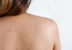 Cách chữa trị bệnh viêm nang lông