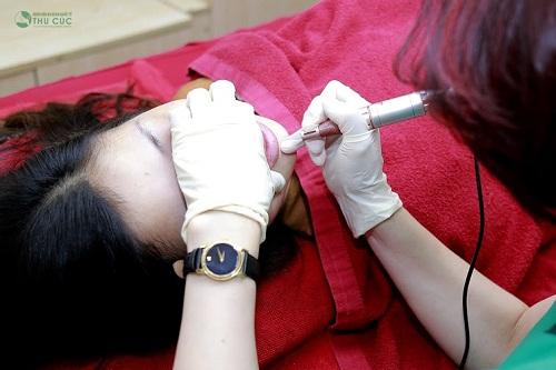 Kỹ thuật phun môi 6D giúp khắc phục tình trạng môi nhợt nhạt, thâm sỉn trở nên tươi hồng tự nhiên.
